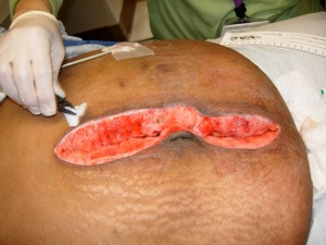 This isn't me, but my wound was about this size. Picture taken from http://www.ucdmc.ucdavis.edu/cppn/resources/clinical_skills_refresher/wound_vac_dressing_change/007.html